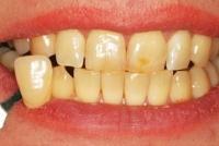 1- تعیین رنگ اولیۀ دندان و گرفتن فتوگرافی