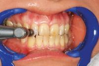 2- تمیزکردن دندانها با برس و پودر پامیس