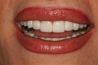 3- لبههای صاف و سفید با رنگ- بعد از لامینیت  BL3
