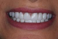 7- لبههای گرد و سفید مات بلیچ (BL2)-بعد از لامینیت