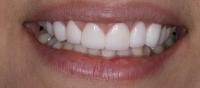 12- افزایش طول دندانها با لیزر و لامینیت پرسلن (با رنگ بلیچBL4)-بعد از لامینیت
