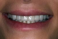 6-دندانهای بلند و لبۀ تخت و شیشهای- بعد از لامینیت