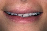 6-دندانهای بلند و لبۀ تخت و شیشهای- قبل از لامینیت