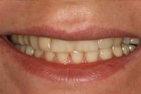 9-اختلاف رنگ لامینتهای سفید با دندانهای عقب-قبل