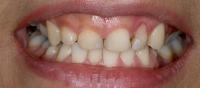 12- افزایش طول دندانها با لیزر و لامینیت پرسلن (با رنگ بلیچBL4)-قبل از لامینیت