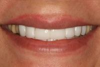 9-اختلاف رنگ لامینتهای سفید با دندانهای عقب-بعد